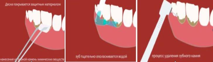 химическое удаление зубного камня
