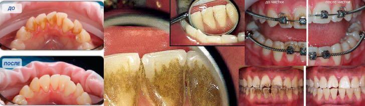 метод air-flow: зубы до и после чистки