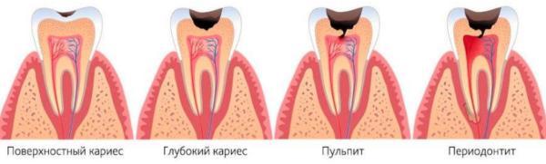 Стадии поражения зуба