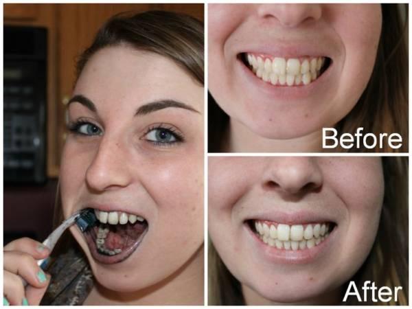 Фото 4: до и после