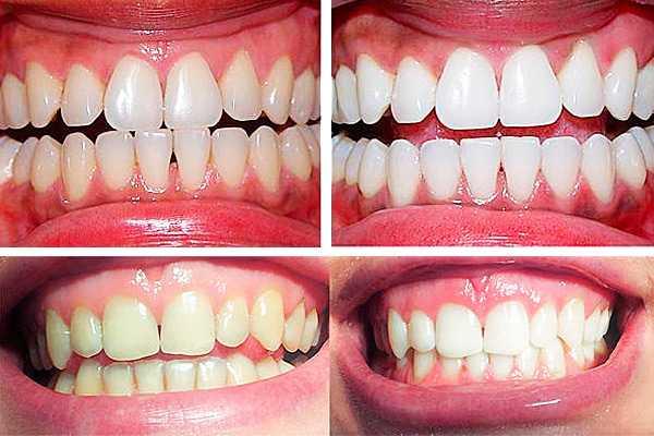 Фото 1: до и после