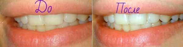 Фото: до и после