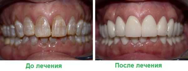 Результат реставрации потемневших зубов
