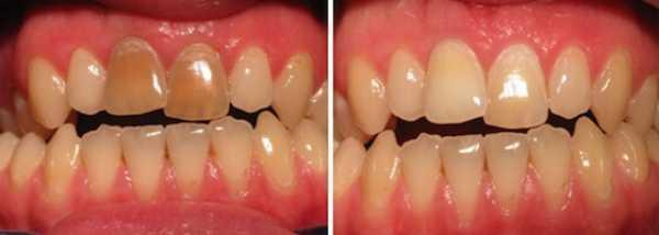 Фото 6: до и после