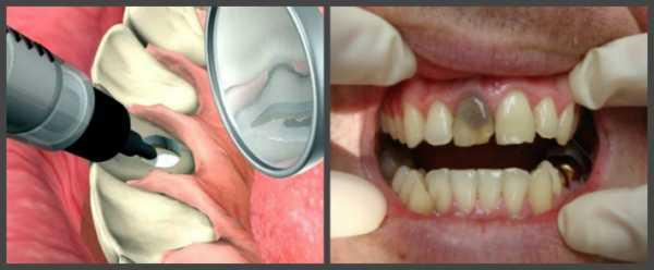 Потемневший передний зуб