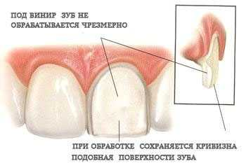Обтачивание зуба под винир
