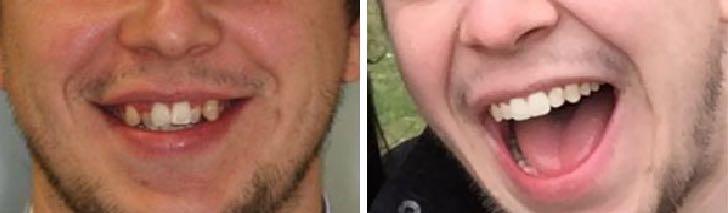 до и после брекеты