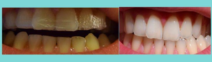 отбеливание зубов полосками