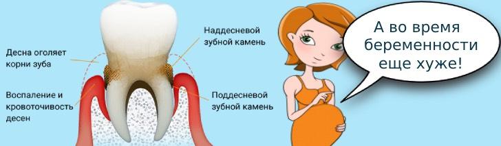 зубной камень у женщин