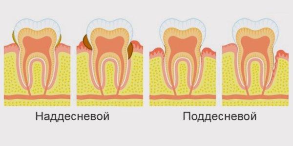 Виду зубного камня