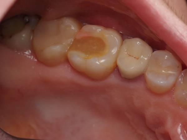 Большая пломба на жевательном зубе