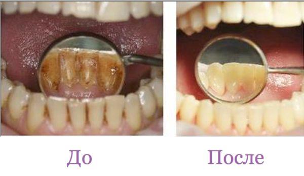 До и после чистки методом Air Flow