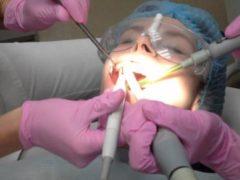 Кому и для чего требуется гигиеническая чистка зубов