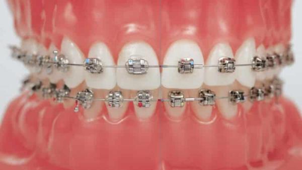 Можно делать чистку зубов если у тебя брекеты