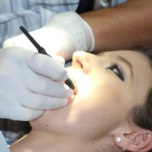 Как удалить зубной камень: обзор профессиональных решений от стоматолога