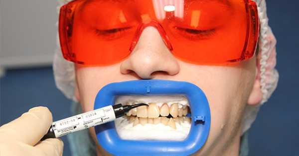 Химическое отбеливание зубов в стоматологии