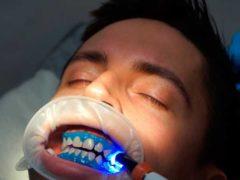 Отбелить зубы лазером? Хорошая идея!