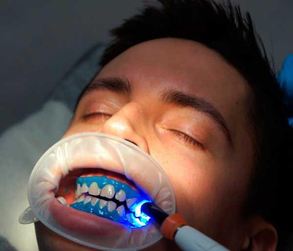 Лазерное отбеливание зубов, фото отбеливание зубов
