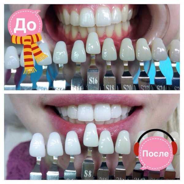 Отбеливание зубов показания и противопоказания