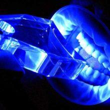 Как можно отбелить зубы ультрафиолетом