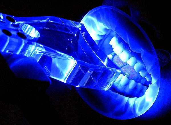 Отбеливание зубов светом – холодное ламповое отбеливание зубов