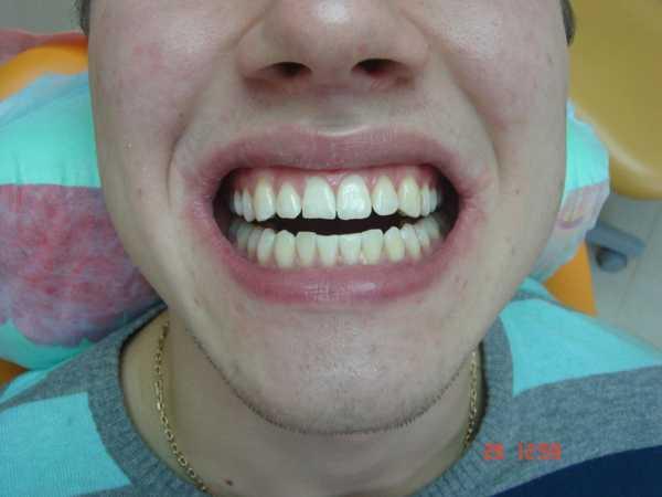 Отбеливание зубов, цены на отбеливание зубов в стоматологии в Москве