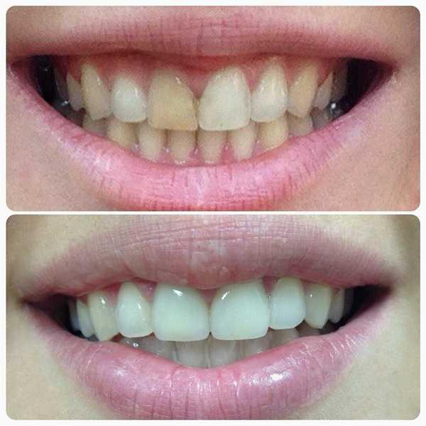 Фото 2: до и после
