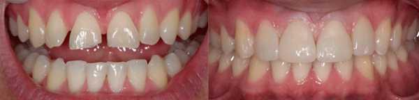 Фото 3: до и после