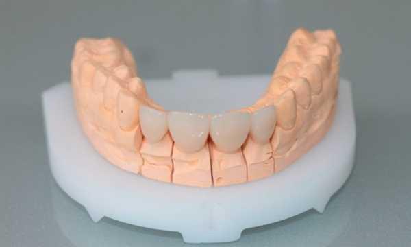 Слепок нижних зубов