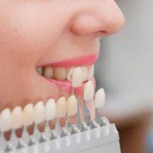 Восстановление зубов винирами от А до Я