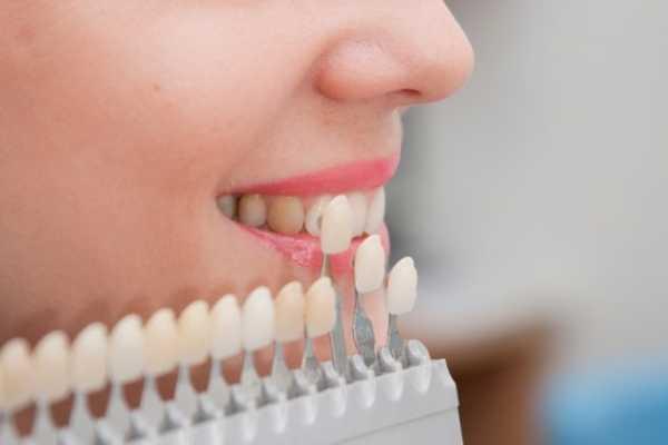 Реставрация зубов композитными винирами
