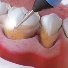 Коричневый налёт на зубах: неприятность, от которой несложно избавиться