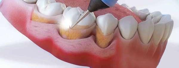 Сильный зубной налет. Причины появления и избавление от коричневого налета на зубах
