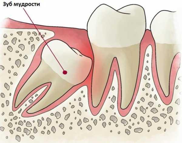 Белый налет на лунке после удаления зуба