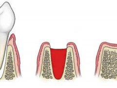 Почему образуется налёт после удаления зуба и как к нему относиться