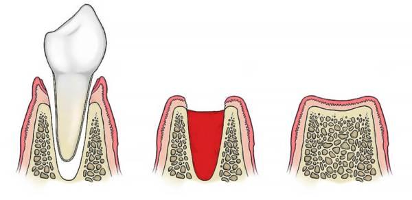 Серый налет на десне после удаления зуба. После удаления зуба в лунке что то твердое