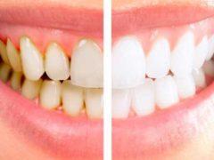 Что делать, если образовался серый налёт на зубах?