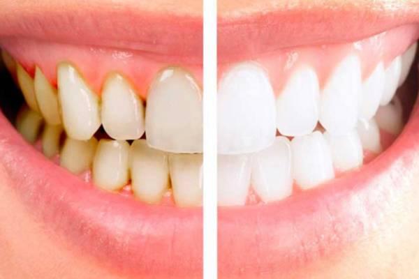 Снятие зубного камня методы профилактика причины появления
