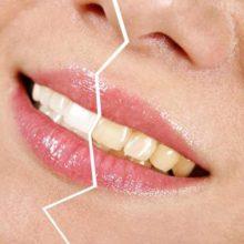 11 способов избавления от желтизны зубов в домашних условиях