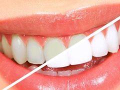 Отбелили зубы? Соблюдаем белую диету!
