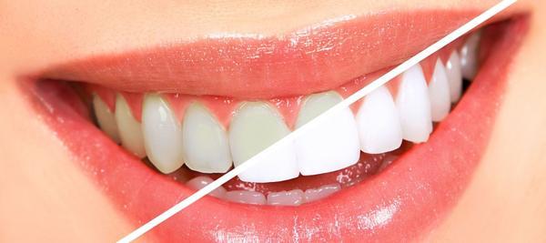 Отбеливание зубов белое вино