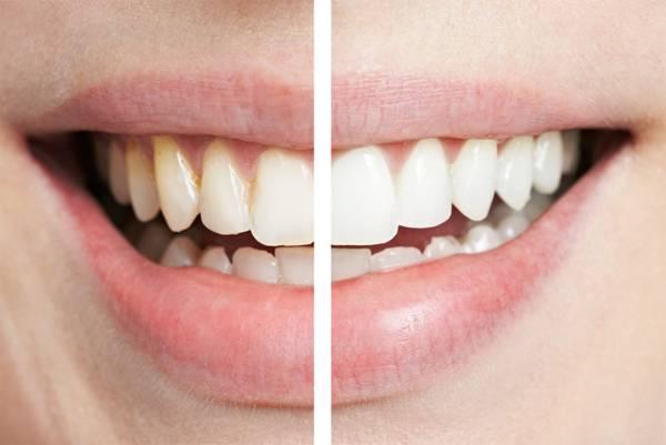 Почему возникает потемнение эмали зубов и как от этого избавиться?