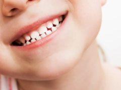 Зачем нужна реставрация молочных зубов детям?