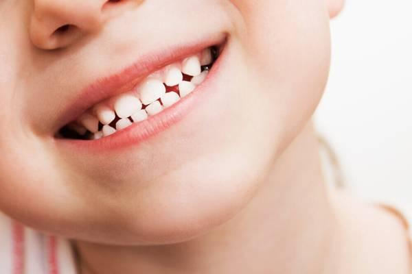 Возможна ли реставрация молочных зубов у детей