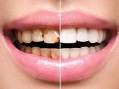 Как проводится эстетическая реставрация передних зубов