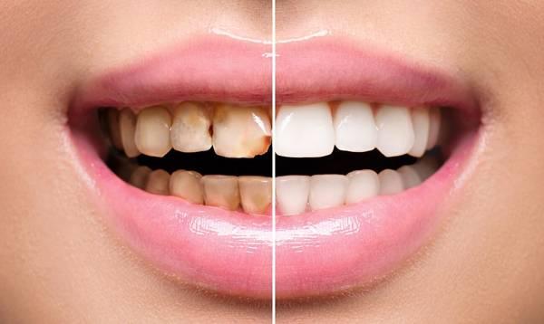 Реставрация зубов – фото до и после, методы, отзывы