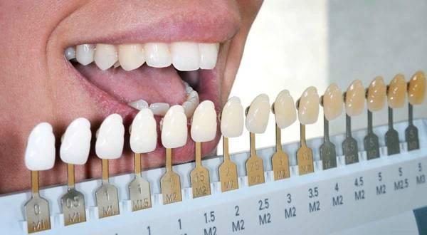 оттенки зубов