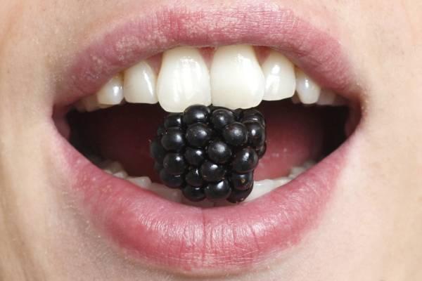 Шкала Вита для контроля отбеливания зубов