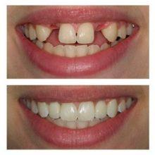 Имплантация зубов: все об операции и ее последствиях кратко и понятно