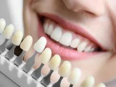 Виниры: плюсы и минусы установки накладок на зубы